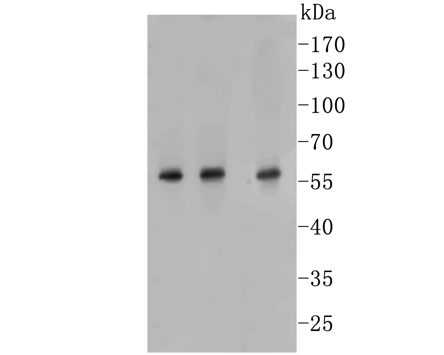 Western blot analysis of PTEN on different lysate. Proteins were transferred to a PVDF membrane and blocked with 5% BSA in PBS for 1 hour at room temperature. The primary antibody (ER1902-27, 1/500) was used in 5% BSA at room temperature for 2 hours. Goat Anti-Rabbit IgG - HRP Secondary Antibody (HA1001) at 1:5,000 dilution was used for 1 hour at room temperature.<br /> Positive control:<br /> Lane 1: THP-1 cell lysate<br /> Lane 2: Mouse lung tissue lysate<br /> Lane 3: A431 cell lysate