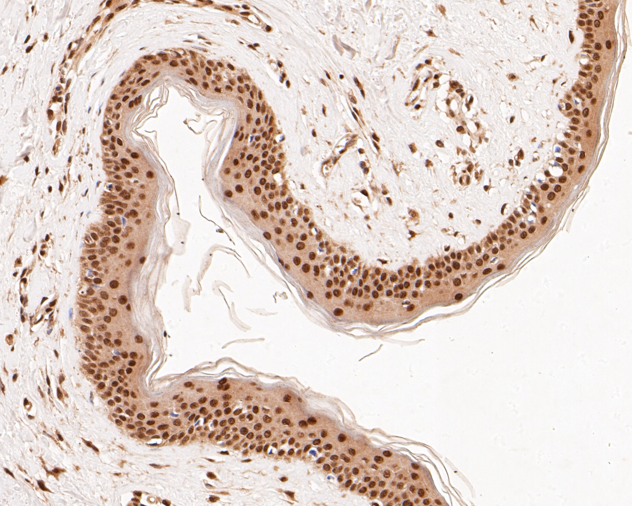 Immunohistochemical analysis of paraffin-embedded human skin tissue using anti-PTEN antibody. The section was pre-treated using heat mediated antigen retrieval with Tris-EDTA buffer (pH 8.0-8.4) for 20 minutes.The tissues were blocked in 5% BSA for 30 minutes at room temperature, washed with ddH2O and PBS, and then probed with the primary antibody (ER1902-27, 1/200) for 30 minutes at room temperature. The detection was performed using an HRP conjugated compact polymer system. DAB was used as the chromogen. Tissues were counterstained with hematoxylin and mounted with DPX.