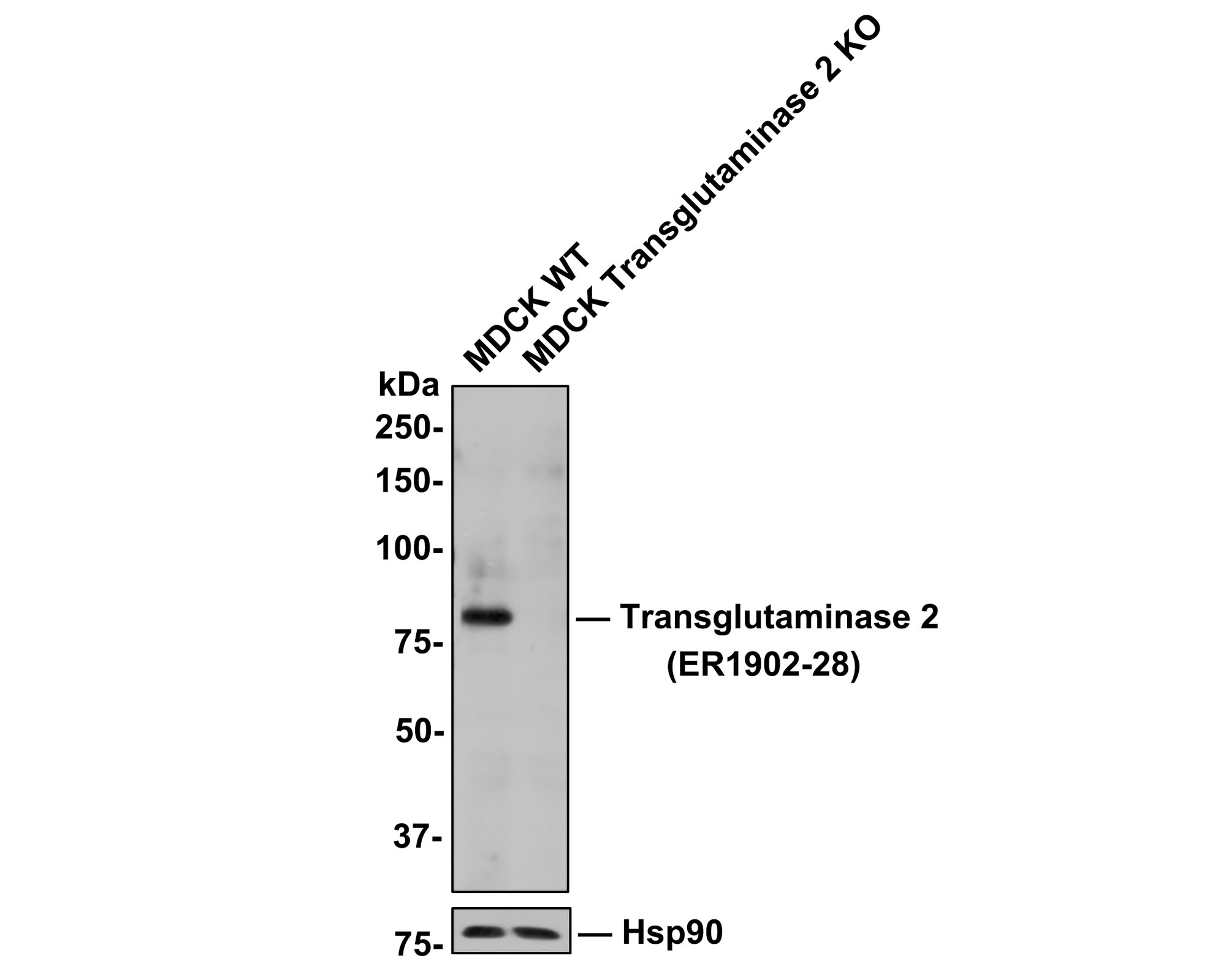 ICC staining of Transglutaminase 2 in HUVEC cells (green). Formalin fixed cells were permeabilized with 0.1% Triton X-100 in TBS for 10 minutes at room temperature and blocked with 1% Blocker BSA for 15 minutes at room temperature. Cells were probed with the primary antibody (ER1902-28, 1/100) for 1 hour at room temperature, washed with PBS. Alexa Fluor®488 Goat anti-Rabbit IgG was used as the secondary antibody at 1/100 dilution. The nuclear counter stain is DAPI (blue).