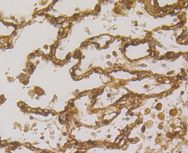 Immunohistochemical analysis of paraffin-embedded human placenta tissue using anti-Transglutaminase 2 antibody. The section was pre-treated using heat mediated antigen retrieval with sodium citrate buffer (pH 6.0) for 20 minutes. The tissues were blocked in 5% BSA for 30 minutes at room temperature, washed with ddH2O and PBS, and then probed with the primary antibody (ER1902-28, 1/800) for 30 minutes at room temperature. The detection was performed using an HRP conjugated compact polymer system. DAB was used as the chromogen. Tissues were counterstained with hematoxylin and mounted with DPX.