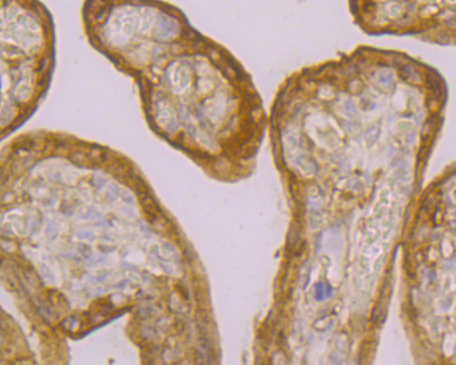 Immunohistochemical analysis of paraffin-embedded mouse heart tissue using anti-Transglutaminase 2 antibody. The section was pre-treated using heat mediated antigen retrieval with sodium citrate buffer (pH 6.0) for 20 minutes. The tissues were blocked in 5% BSA for 30 minutes at room temperature, washed with ddH2O and PBS, and then probed with the primary antibody (ER1902-28, 1/800) for 30 minutes at room temperature. The detection was performed using an HRP conjugated compact polymer system. DAB was used as the chromogen. Tissues were counterstained with hematoxylin and mounted with DPX.