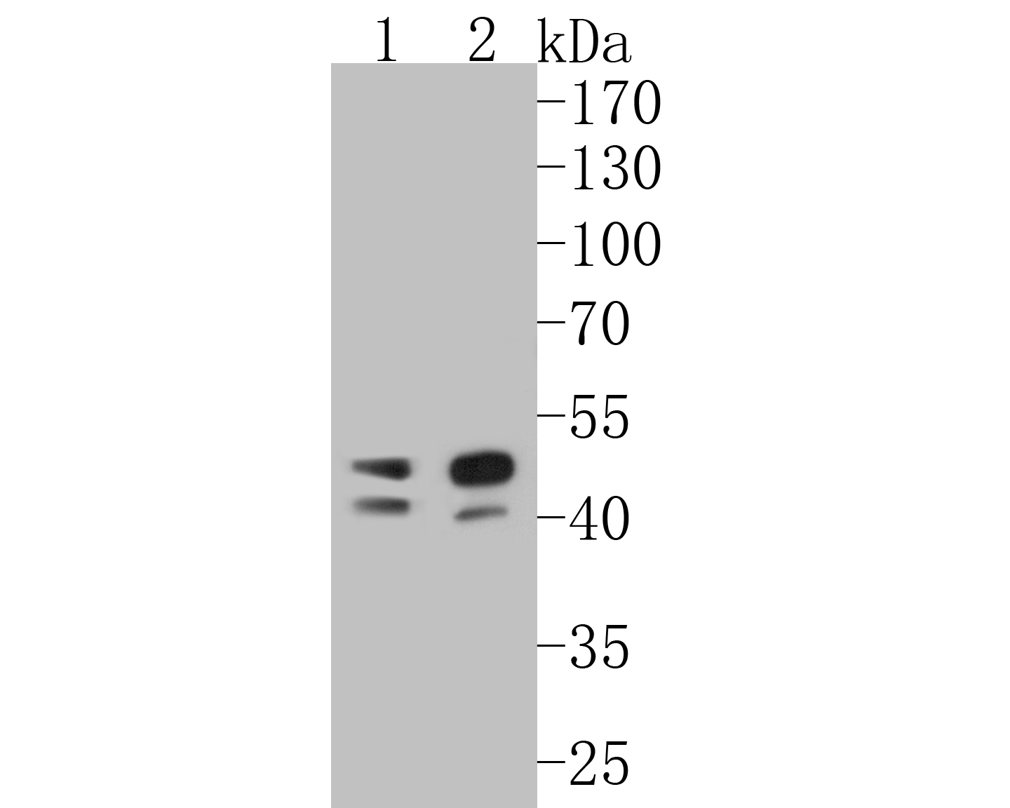 Western blot analysis of TMX4 on different lysates. Proteins were transferred to a PVDF membrane and blocked with 5% BSA in PBS for 1 hour at room temperature. The primary antibody (ER1902-31, 1/500) was used in 5% BSA at room temperature for 2 hours. Goat Anti-Rabbit IgG - HRP Secondary Antibody (HA1001) at 1:5,000 dilution was used for 1 hour at room temperature.<br /> Positive control: <br /> Lane 1: Daudi cell lysate<br /> Lane 2: Human skin tissue lysate
