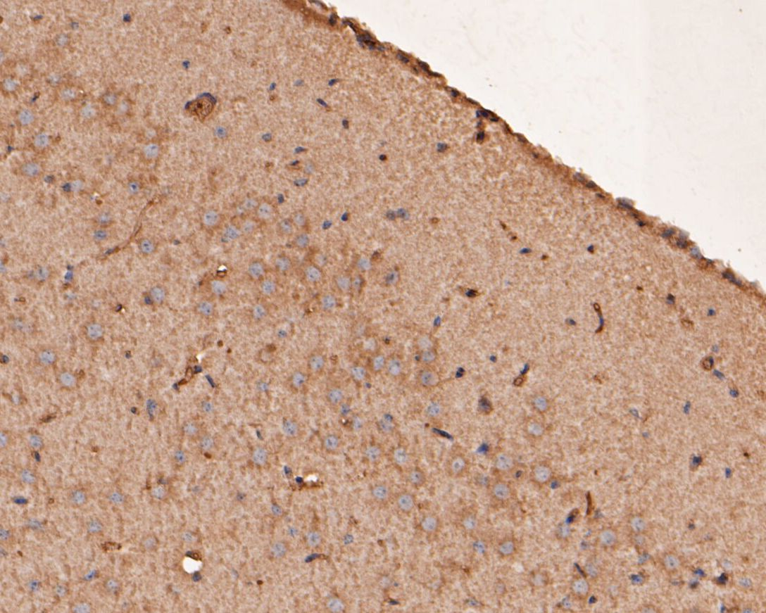 Flow cytometric analysis of PTEN was done on SH-SY5Y cells. The cells were fixed, permeabilized and stained with the primary antibody (ER1902-33, 1/50) (red). After incubation of the primary antibody at room temperature for an hour, the cells were stained with a Alexa Fluor 488-conjugated Goat anti-Rabbit IgG Secondary antibody at 1/1000 dilution for 30 minutes.Unlabelled sample was used as a control (cells without incubation with primary antibody; black).