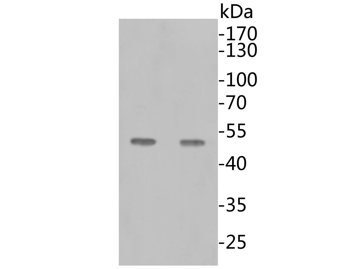 Western blot using anti-SARS-CoV-2 Nucleocapsid Protein antibody shows detection of a 48 kDa band corresponding to the protein.