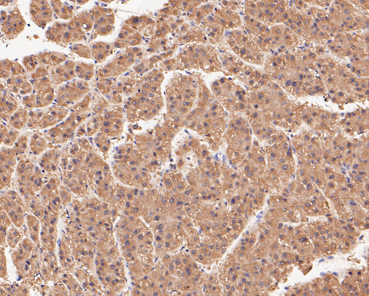 Immunohistochemical analysis of paraffin-embedded human liver tissue using anti-Connexin-26 antibody. The section was pre-treated using heat mediated antigen retrieval with Tris-EDTA buffer (pH 8.0-8.4) for 20 minutes.The tissues were blocked in 5% BSA for 30 minutes at room temperature, washed with ddH2O and PBS, and then probed with the primary antibody (ER1902-42, 1/200) for 30 minutes at room temperature. The detection was performed using an HRP conjugated compact polymer system. DAB was used as the chromogen. Tissues were counterstained with hematoxylin and mounted with DPX.