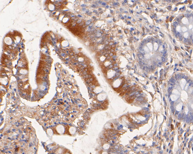 Immunohistochemical analysis of paraffin-embedded human small intestine tissue using anti-NHE-1 antibody. The section was pre-treated using heat mediated antigen retrieval with Tris-EDTA buffer (pH 8.0-8.4) for 20 minutes.The tissues were blocked in 5% BSA for 30 minutes at room temperature, washed with ddH2O and PBS, and then probed with the primary antibody (ER1902-51, 1/50) for 30 minutes at room temperature. The detection was performed using an HRP conjugated compact polymer system. DAB was used as the chromogen. Tissues were counterstained with hematoxylin and mounted with DPX.