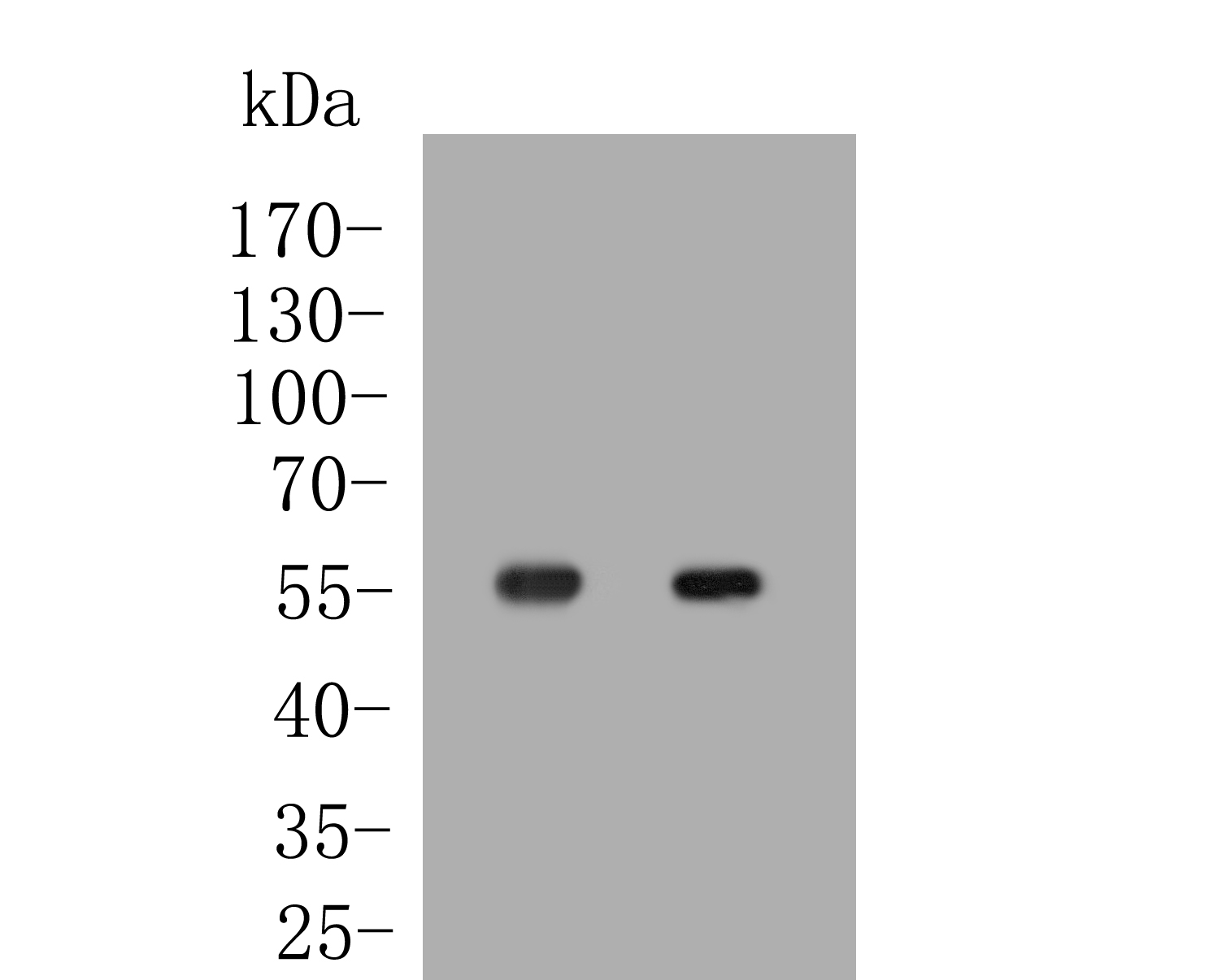 Western blot analysis of Perilipin-5 on different lysates. Proteins were transferred to a PVDF membrane and blocked with 5% BSA in PBS for 1 hour at room temperature. The primary antibody (ER1902-53, 1/500) was used in 5% BSA at room temperature for 2 hours. Goat Anti-Rabbit IgG - HRP Secondary Antibody (HA1001) at 1:5,000 dilution was used for 1 hour at room temperature.<br />  Positive control: <br />  Lane 1: Human liver tissue lysate<br />  Lane 2: Human marrow tissue lysate