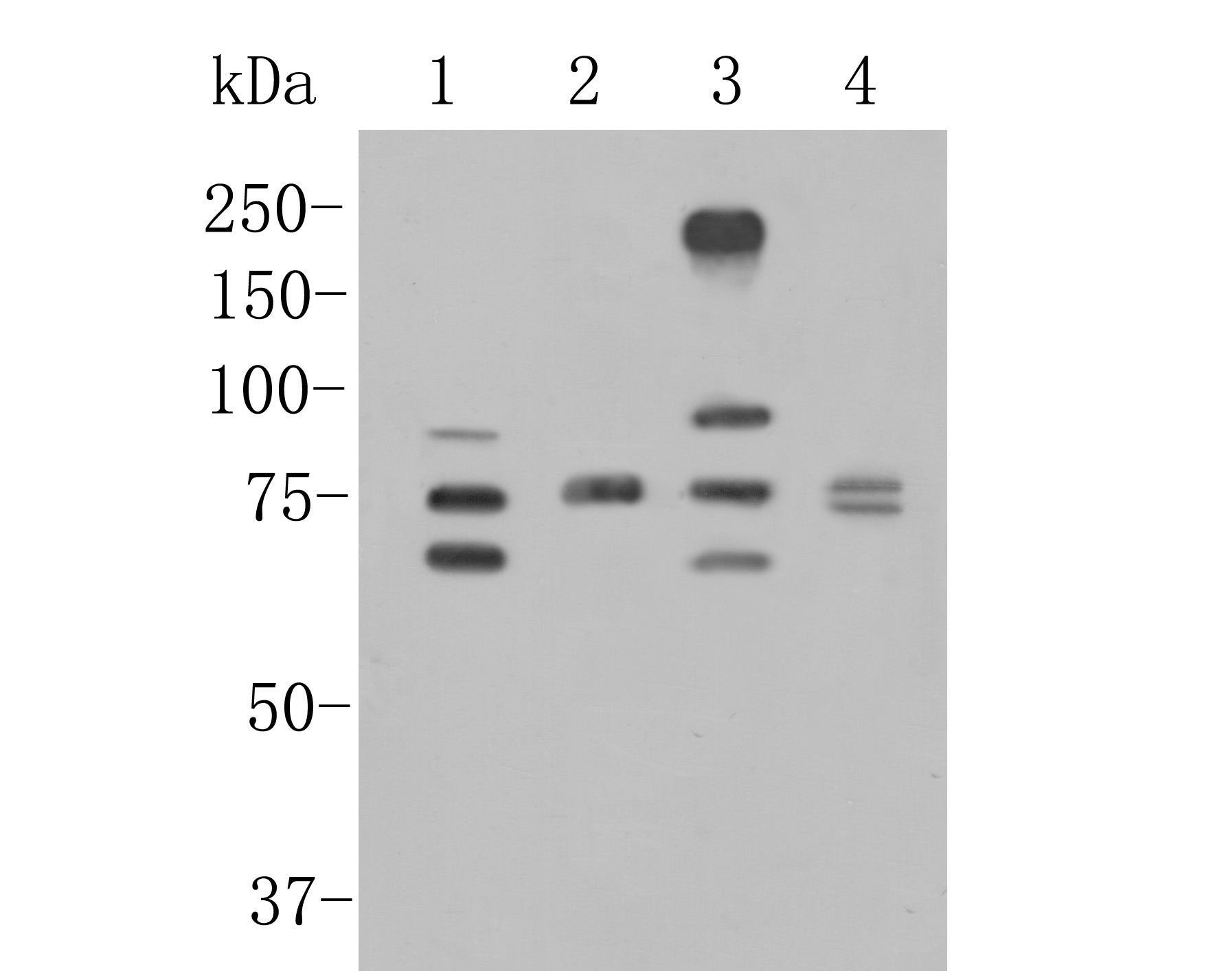 Western blot analysis of CEACAM6 on different lysates. Proteins were transferred to a PVDF membrane and blocked with 5% BSA in PBS for 1 hour at room temperature. The primary antibody (ER1902-54, 1/500) was used in 5% BSA at room temperature for 2 hours. Goat Anti-Rabbit IgG - HRP Secondary Antibody (HA1001) at 1:5,000 dilution was used for 1 hour at room temperature.<br /> Positive control: <br /> Lane 1: JAR cell lysate<br /> Lane 2: Rat lung tissue lysate<br /> Lane 3: MCF-7 cell lysate<br /> Lane 2: Human lung tissue lysate