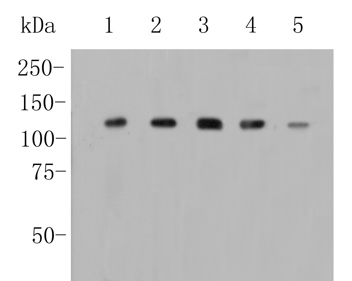 Western blot analysis of Drebrin on different lysates. Proteins were transferred to a PVDF membrane and blocked with 5% BSA in PBS for 1 hour at room temperature. The primary antibody (ER1902-55, 1/1000) was used in 5% BSA at room temperature for 2 hours. Goat Anti-Rabbit IgG - HRP Secondary Antibody (HA1001) at 1:5,000 dilution was used for 1 hour at room temperature.<br /> Positive control: <br /> Lane 1: A549 cell lysate<br /> Lane 2: PC-3M cell lysate<br /> Lane 3: HepG2 cell lysate<br /> Lane 4: 293 cell lysate<br /> Lane 5: Siha cell lysate