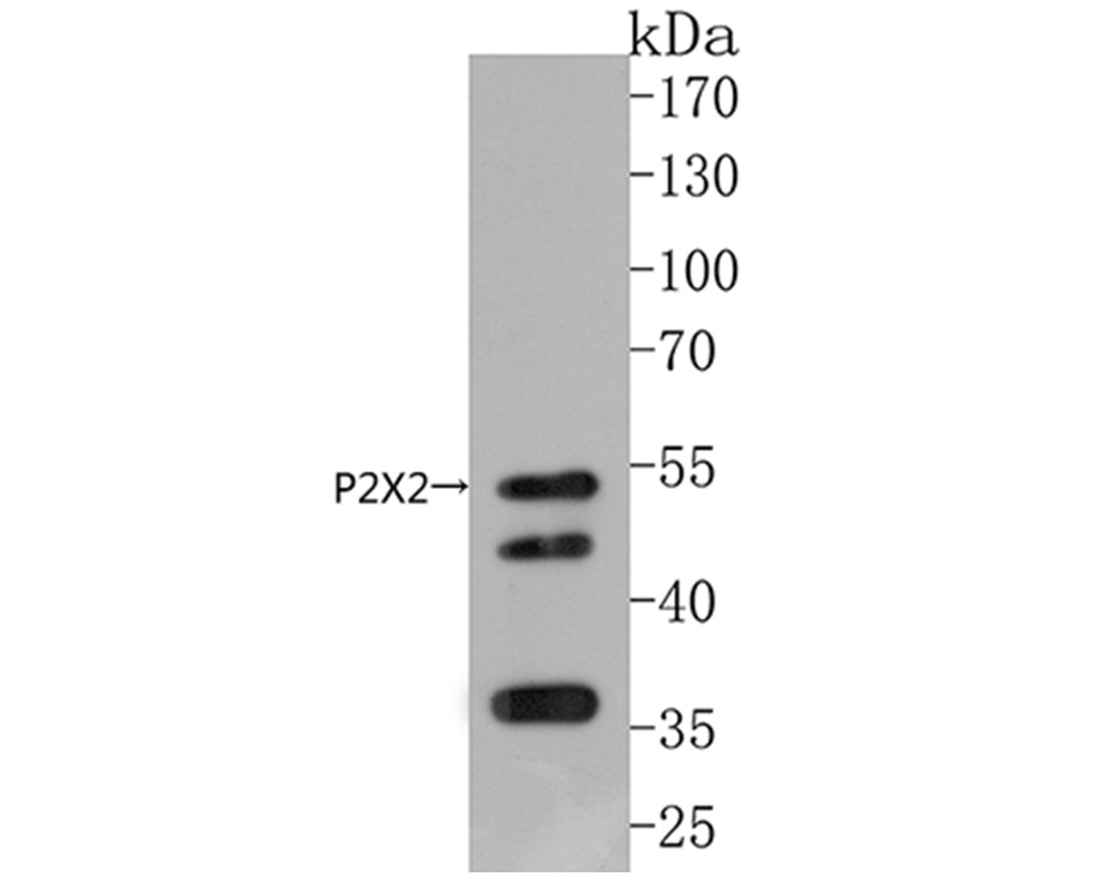Western blot analysis of P2X2 on mouse brain tissue lysates. Proteins were transferred to a PVDF membrane and blocked with 5% BSA in PBS for 1 hour at room temperature. The primary antibody (ER1902-59, 1/500) was used in 5% BSA at room temperature for 2 hours. Goat Anti-Rabbit IgG - HRP Secondary Antibody (HA1001) at 1:5,000 dilution was used for 1 hour at room temperature.
