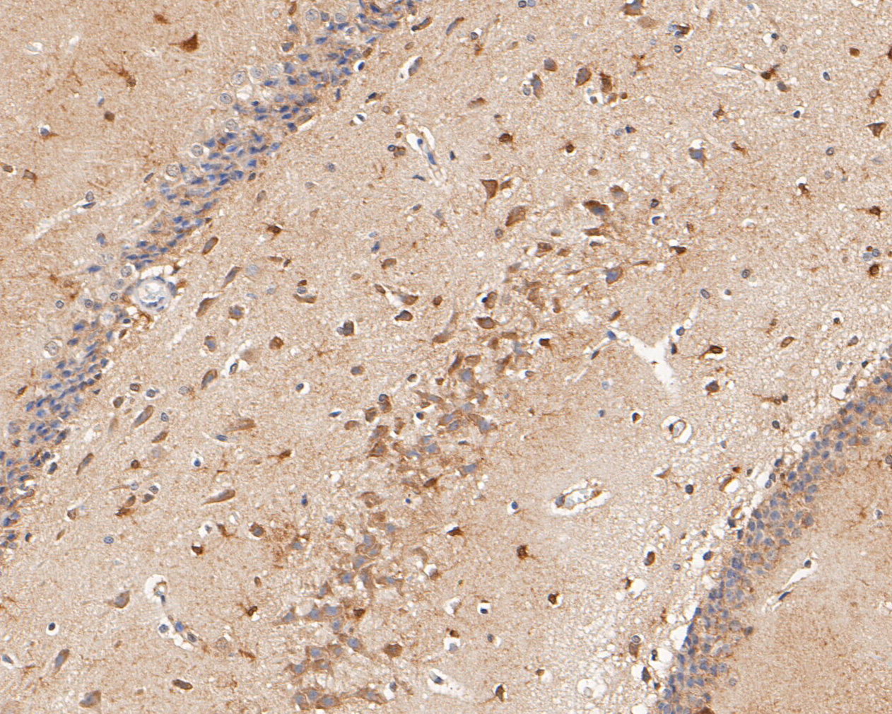 Immunohistochemical analysis of paraffin-embedded rat brain tissue using anti-P2X2 antibody. The section was pre-treated using heat mediated antigen retrieval with Tris-EDTA buffer (pH 8.0-8.4) for 20 minutes.The tissues were blocked in 5% BSA for 30 minutes at room temperature, washed with ddH2O and PBS, and then probed with the primary antibody (ER1902-59, 1/50) for 30 minutes at room temperature. The detection was performed using an HRP conjugated compact polymer system. DAB was used as the chromogen. Tissues were counterstained with hematoxylin and mounted with DPX.