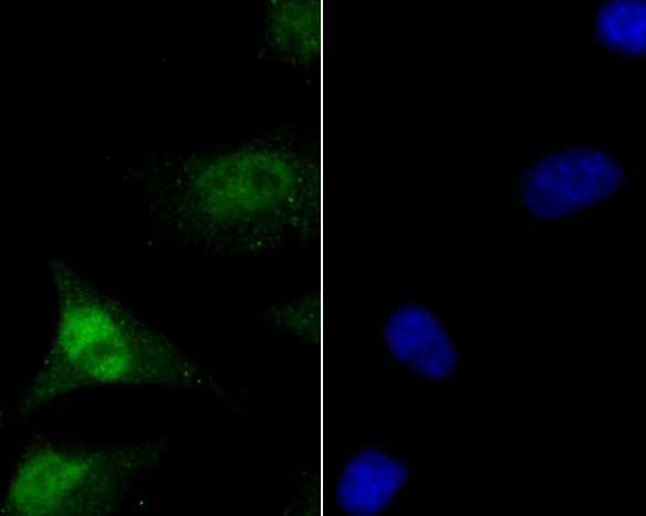 ICC staining of MCM7 in SHSY5Y cells (green). Formalin fixed cells were permeabilized with 0.1% Triton X-100 in TBS for 10 minutes at room temperature and blocked with 1% Blocker BSA for 15 minutes at room temperature. Cells were probed with the primary antibody (ER1902-60, 1/200) for 1 hour at room temperature, washed with PBS. Alexa Fluor®488 Goat anti-Rabbit IgG was used as the secondary antibody at 1/100 dilution. The nuclear counter stain is DAPI (blue).
