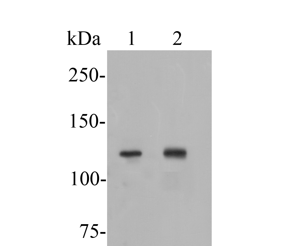 Western blot analysis of ATP8A1 on different lysates. Proteins were transferred to a PVDF membrane and blocked with 5% BSA in PBS for 1 hour at room temperature. The primary antibody (ER1902-61, 1/500) was used in 5% BSA at room temperature for 2 hours. Goat Anti-Rabbit IgG - HRP Secondary Antibody (HA1001) at 1:5,000 dilution was used for 1 hour at room temperature.<br />  Positive control: <br />  Lane 1: MCF-7 cell lysate<br />  Lane 2: Rat brain tissue lysate