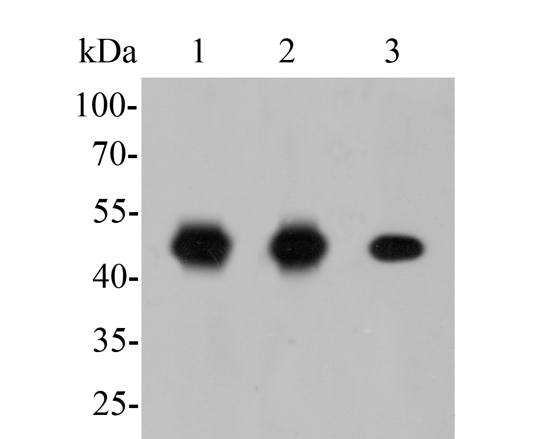 Western blot analysis of FEN1 on different lysates. Proteins were transferred to a PVDF membrane and blocked with 5% BSA in PBS for 1 hour at room temperature. The primary antibody (ER1902-64, 1/500) was used in 5% BSA at room temperature for 2 hours. Goat Anti-Rabbit IgG - HRP Secondary Antibody (HA1001) at 1:5,000 dilution was used for 1 hour at room temperature.<br /> Positive control: <br /> Lane 1: K562 cell lysate<br /> Lane 2: Daudi cell lysate<br /> Lane 2: SHSY5Y cell lysate