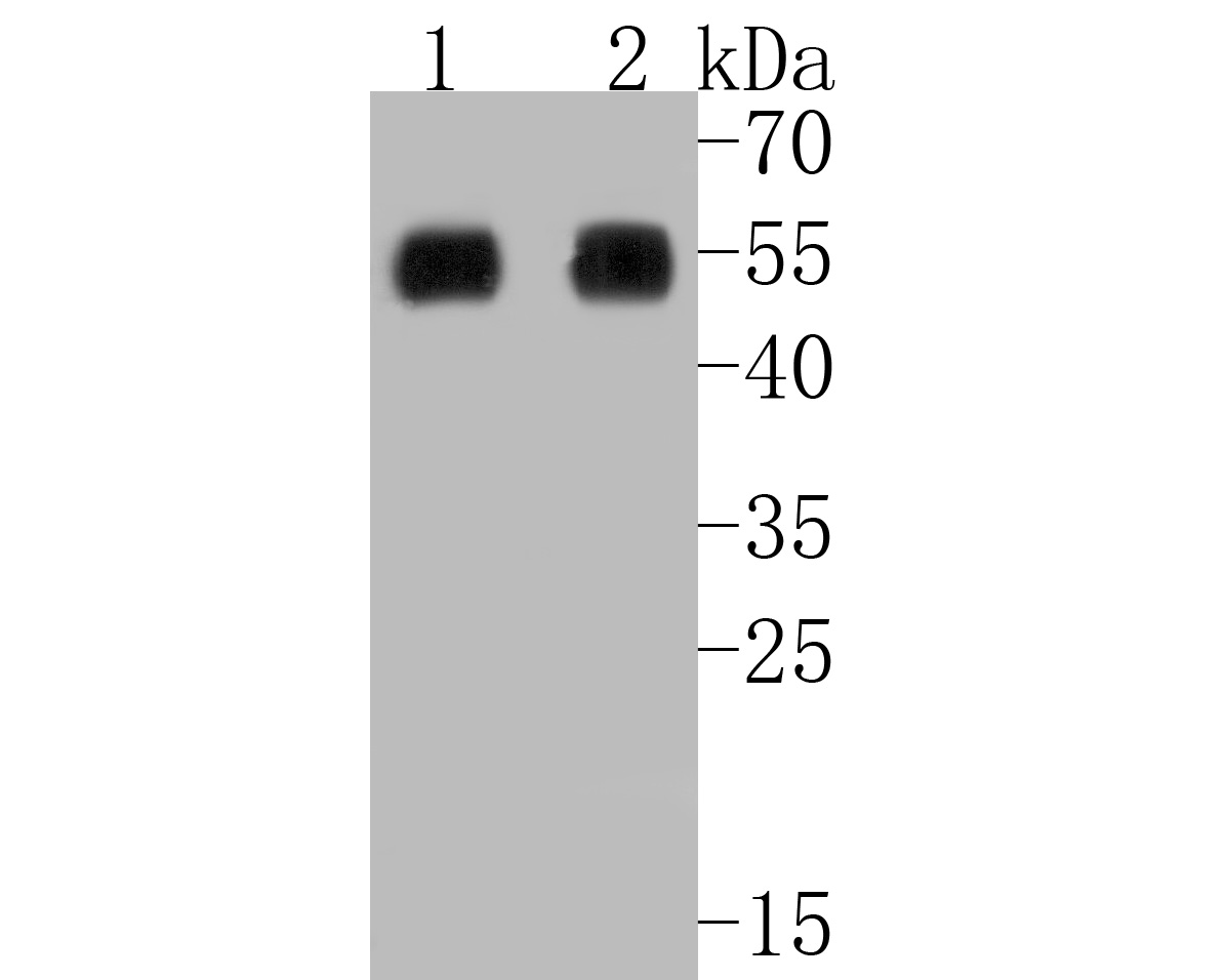 Western blot analysis of RIP3 on different lysates. Proteins were transferred to a PVDF membrane and blocked with 5% BSA in PBS for 1 hour at room temperature. The primary antibody (ER1902-67, 1/500) was used in 5% BSA at room temperature for 2 hours. Goat Anti-Rabbit IgG - HRP Secondary Antibody (HA1001) at 1:5,000 dilution was used for 1 hour at room temperature.<br /> Positive control: <br /> Lane 1: human lung carcinoma tissue lysate<br /> Lane 2: human placenta tissue lysate