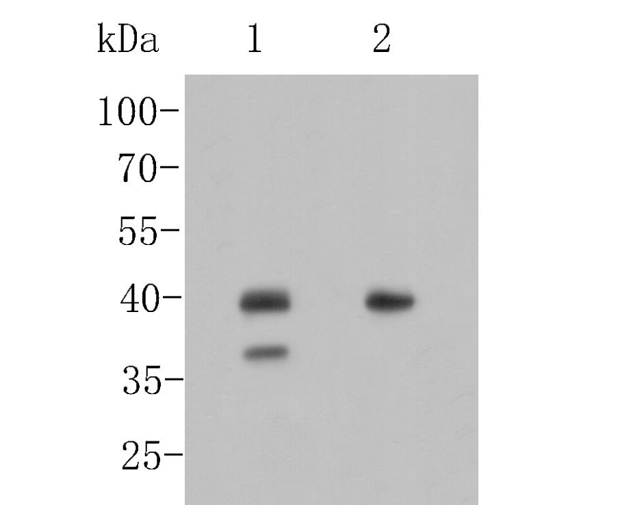 Western blot analysis of TTF-1 on different lysates. Proteins were transferred to a PVDF membrane and blocked with 5% BSA in PBS for 1 hour at room temperature. The primary antibody (ER1902-68, 1/500) was used in 5% BSA at room temperature for 2 hours. Goat Anti-Rabbit IgG - HRP Secondary Antibody (HA1001) at 1:5,000 dilution was used for 1 hour at room temperature.<br /> Positive control: <br /> Lane 1: Mouse lung tissue lysate<br /> Lane 2: Rat lung tissue lysate
