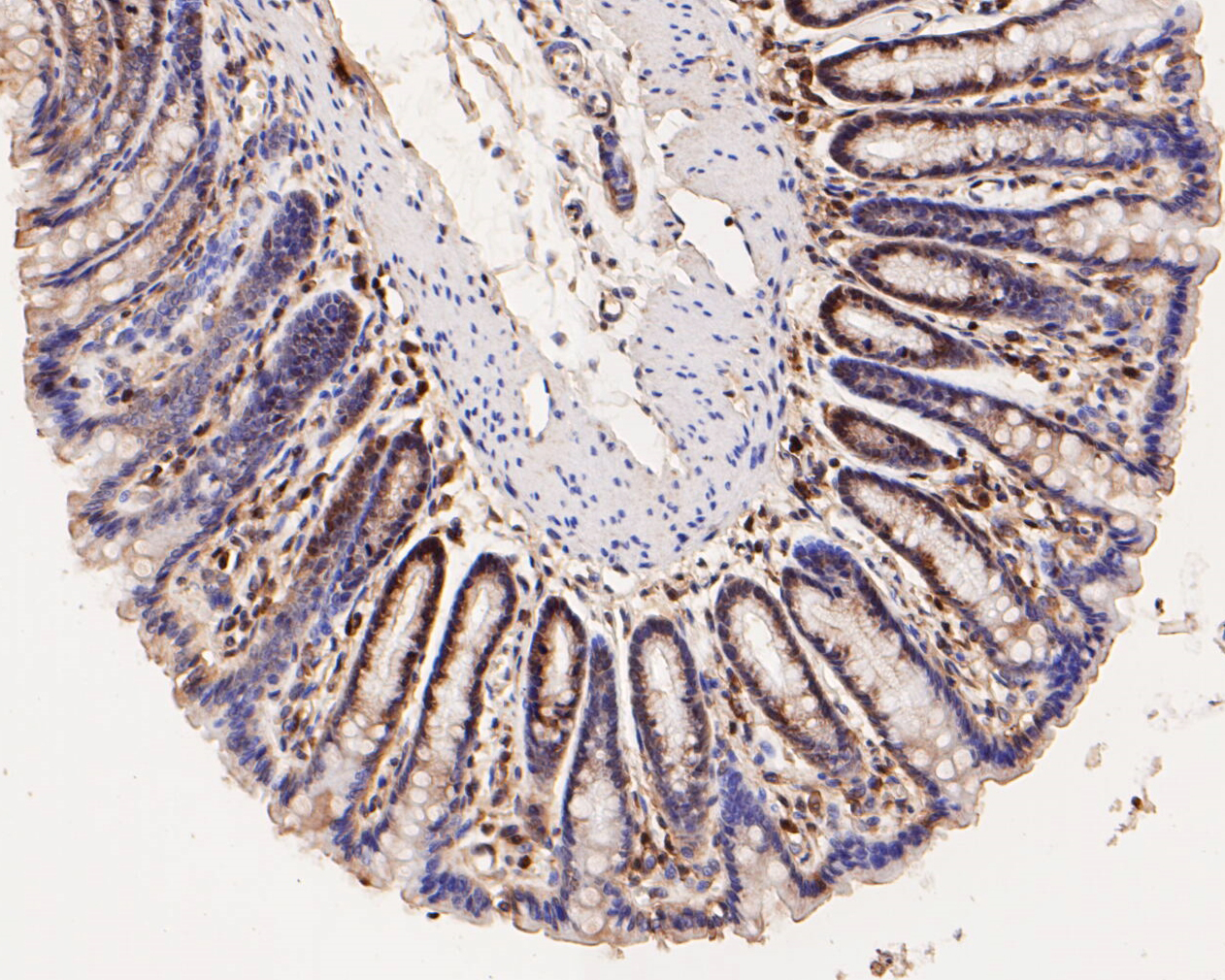Immunohistochemical analysis of paraffin-embedded rat large intestine tissue using anti-GATA3 antibody. The section was pre-treated using heat mediated antigen retrieval with Tris-EDTA buffer (pH 8.0-8.4) for 20 minutes.The tissues were blocked in 5% BSA for 30 minutes at room temperature, washed with ddH2O and PBS, and then probed with the primary antibody (ER1902-69, 1/50) for 30 minutes at room temperature. The detection was performed using an HRP conjugated compact polymer system. DAB was used as the chromogen. Tissues were counterstained with hematoxylin and mounted with DPX.