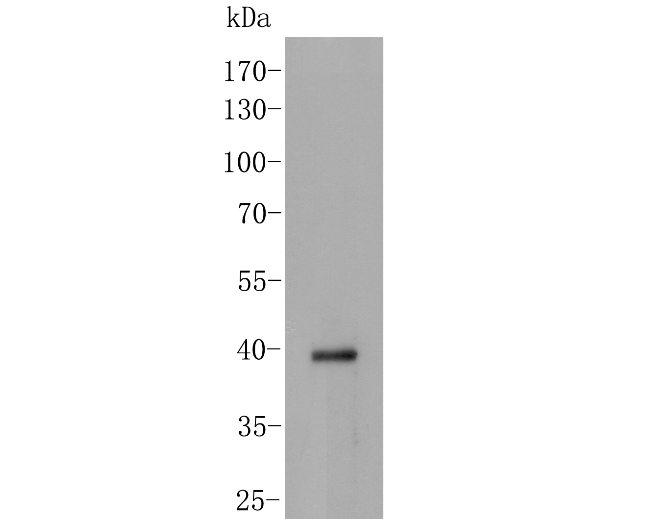 Western blot analysis of CD1a on rat skin tissue lysate lysates. Proteins were transferred to a PVDF membrane and blocked with 5% BSA in PBS for 1 hour at room temperature. The primary antibody (ER1902-73, 1/1,000) was used in 5% BSA at room temperature for 2 hours. Goat Anti-Rabbit IgG - HRP Secondary Antibody (HA1001) at 1:5,000 dilution was used for 1 hour at room temperature.