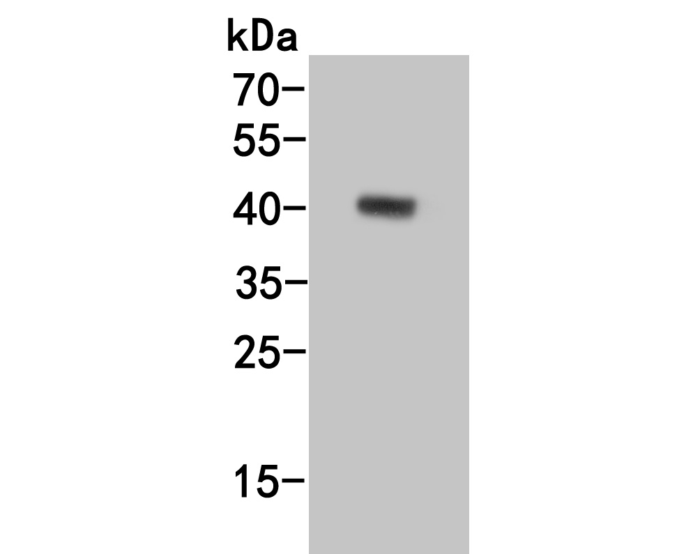 Western blot analysis of CD1a on human skin tissue lysate lysates. Proteins were transferred to a PVDF membrane and blocked with 5% BSA in PBS for 1 hour at room temperature. The primary antibody (ER1902-73, 1/500) was used in 5% BSA at room temperature for 2 hours. Goat Anti-Rabbit IgG - HRP Secondary Antibody (HA1001) at 1:5,000 dilution was used for 1 hour at room temperature.