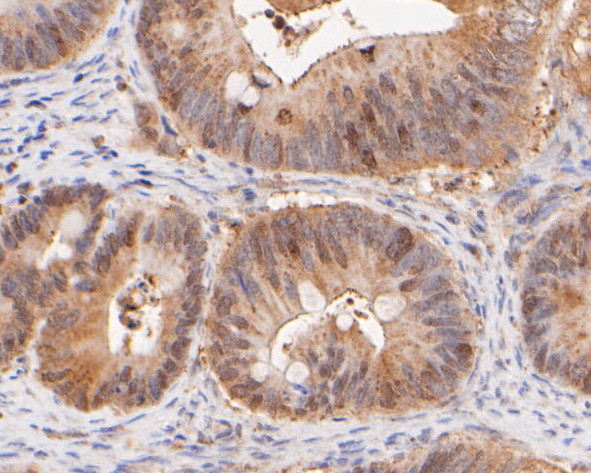 Immunohistochemical analysis of paraffin-embedded human colon cancer tissue using anti-Ki67 antibody. The section was pre-treated using heat mediated antigen retrieval with sodium citrate buffer (pH 6.0) for 20 minutes. The tissues were blocked in 5% BSA for 30 minutes at room temperature, washed with ddH2O and PBS, and then probed with the primary antibody (ER1902-75, 1/400) for 30 minutes at room temperature. The detection was performed using an HRP conjugated compact polymer system. DAB was used as the chromogen. Tissues were counterstained with hematoxylin and mounted with DPX.