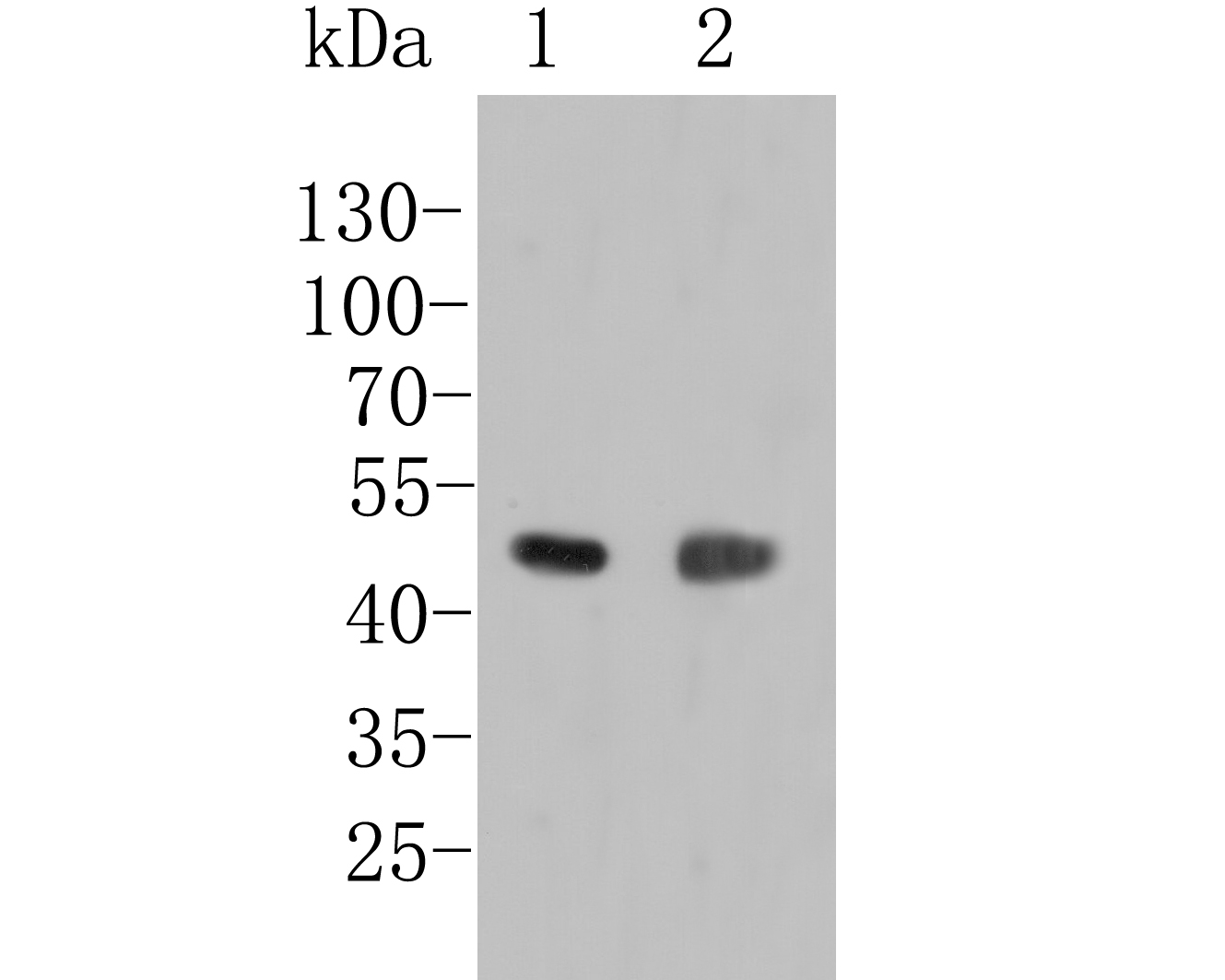 Western blot analysis of LIM1 on different lysates. Proteins were transferred to a PVDF membrane and blocked with 5% BSA in PBS for 1 hour at room temperature. The primary antibody (ER1902-83, 1/1000) was used in 5% BSA at room temperature for 2 hours. Goat Anti-Rabbit IgG - HRP Secondary Antibody (HA1001) at 1:5,000 dilution was used for 1 hour at room temperature.<br /> Positive control: <br /> Lane 1: A431 cell lysate <br /> Lane 2: Zebrafish tissue lysate