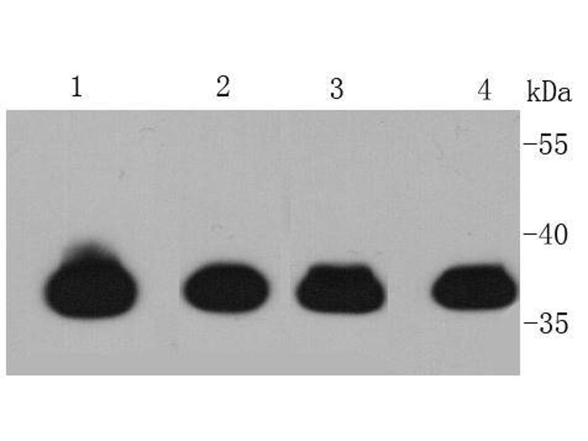 Western blot analysis of TNNT2 on different lysates using anti-TNNT2 antibody at 1/5,000 dilution.