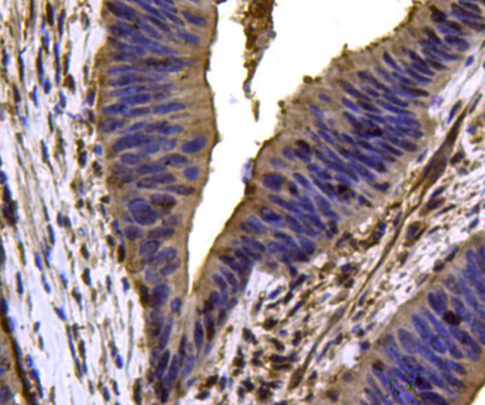 Immunohistochemical analysis of paraffin-embedded human uterus tissue using anti-VCP antibody. Counter stained with hematoxylin.