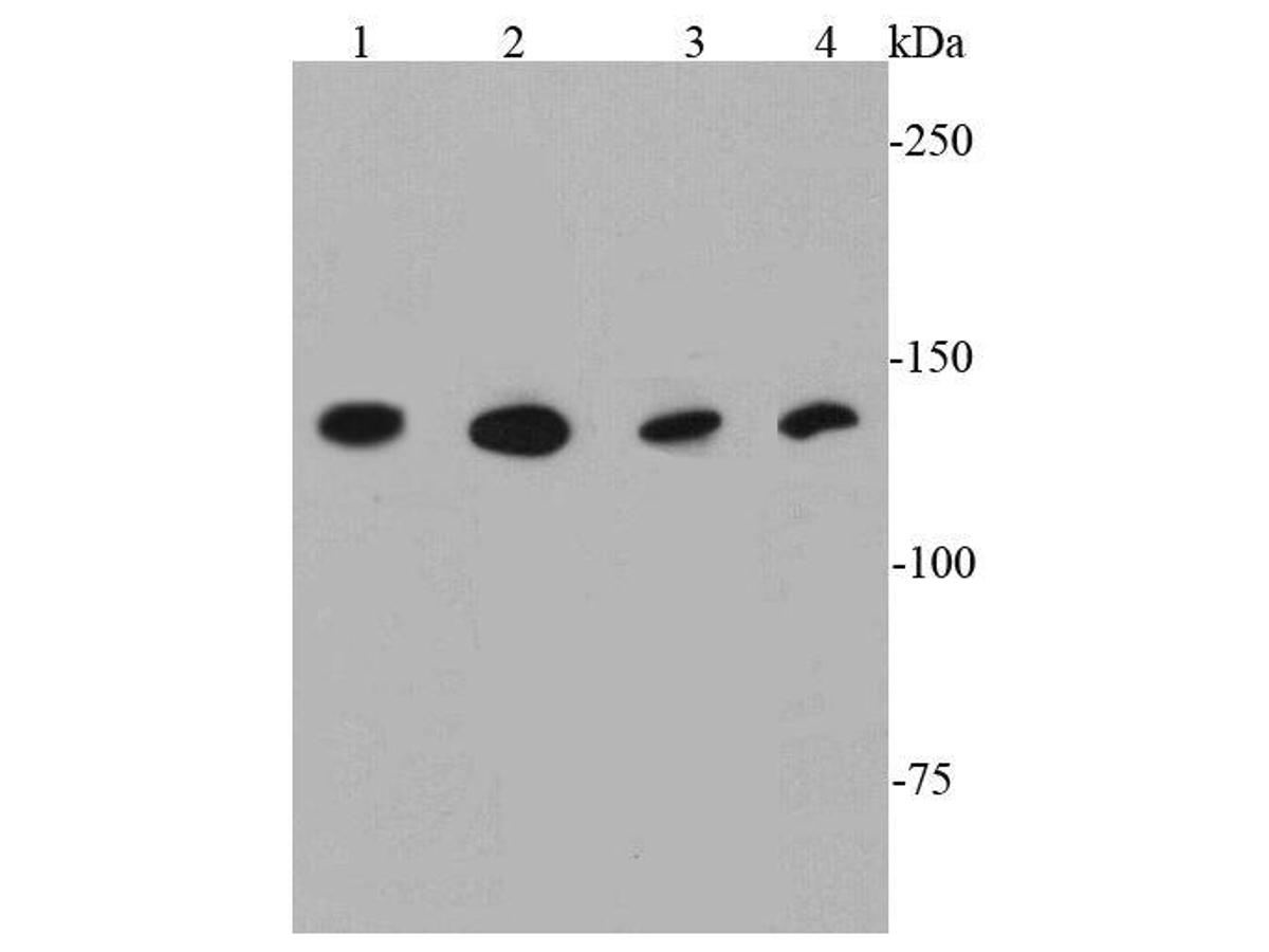 Western blot analysis of TLR7 on different cell lysates using anti-TLR7 antibody at 1/1000 dilution.<br /> Positive control:   <br /> Lane 1: Raji             <br /> Lane 2: Daudi <br /> Lane 3: Jurkat           <br /> Lane 4: THP-1