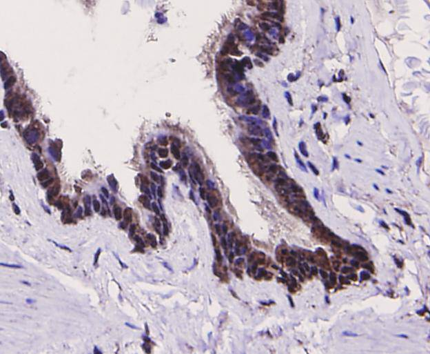 Immunohistochemical analysis of paraffin-embedded human lung tissue using anti-TLR7 antibody. Counter stained with hematoxylin.