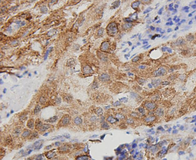 Flow cytometric analysis of Hela cells with VEGF antibody at 1/100 dilution (blue) compared with an unlabelled control (cells without incubation with primary antibody; red). Goat anti rabbit IgG (FITC) was used as the secondary antibody.