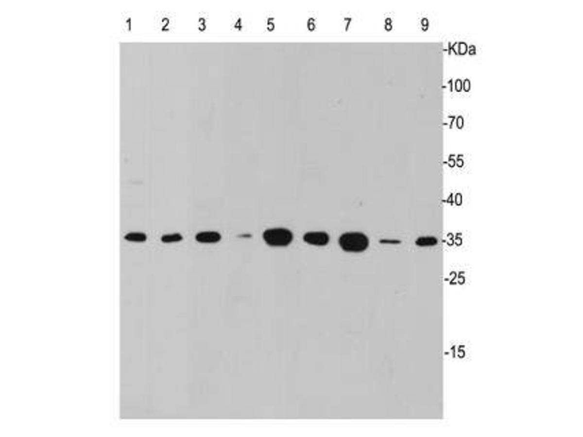 Western blot analysis of Caspase-3 on different lysates using anti- Caspase-3 antibody at 1/1,000 dilution.<br /> Positive control:<br /> Lane 1: Human lung<br /> Lane 2: Human brain<br /> Lane 3: Jurkat<br /> Lane 4: F9<br /> Lane 5: NCCTI<br /> Lane 6: Daudi<br /> Lane 7: Raji<br /> Lane 8: MCF-7<br /> Lane 9: Hela