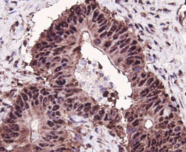 Immunohistochemical analysis of paraffin-embedded human colon cancer tissue using anti-MSH6 antibody. Counter stained with hematoxylin.