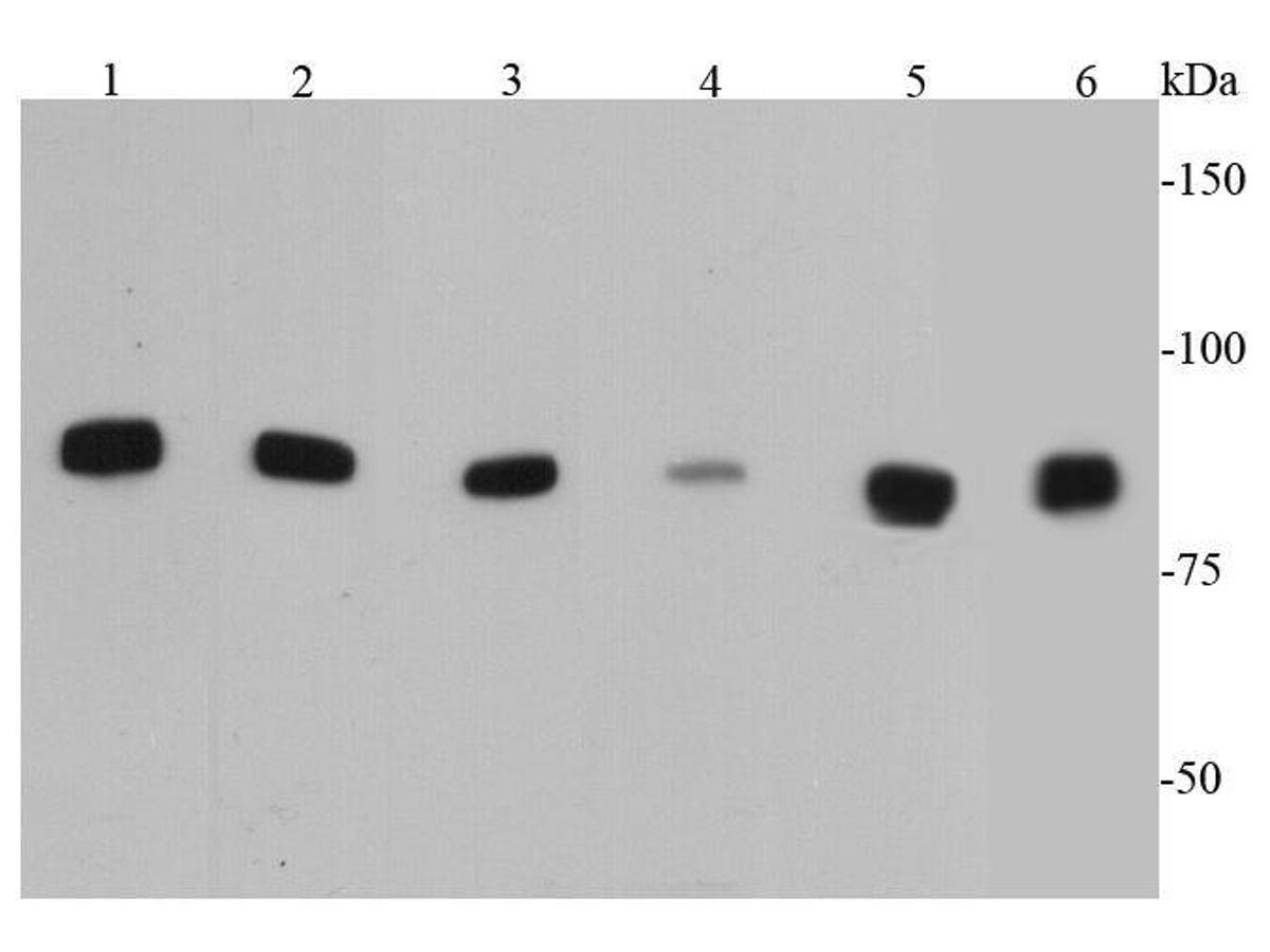 Western blot analysis of IKK alpha on different cell lysates using anti-IKK alpha antibody at 1/500 dilution.<br /> Positive control:   <br /> Lane 1: Hela           <br /> Lane 2: HepG2 <br /> Lane 3: Raji           <br /> Lane 4: NIH/3T3 <br /> Lane 5: PC12           <br /> Lane 6: Jurkat
