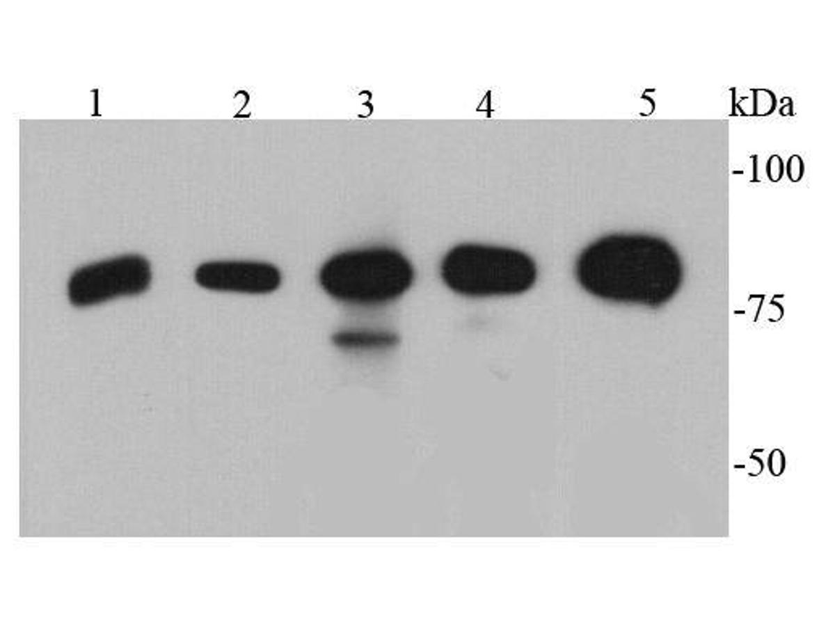 Western blot analysis of p70 S6 Kinase beta on different cell lysates using anti-p70 S6 Kinase beta antibody at 1/500 dilution.<br />  Positive control: <br />  Lane 1: PC12 <br />  Lane 2: NIH/3T3 <br />  Lane 3: Jurkat <br />  Lane 4: K562 <br />  Lane 5: Hela