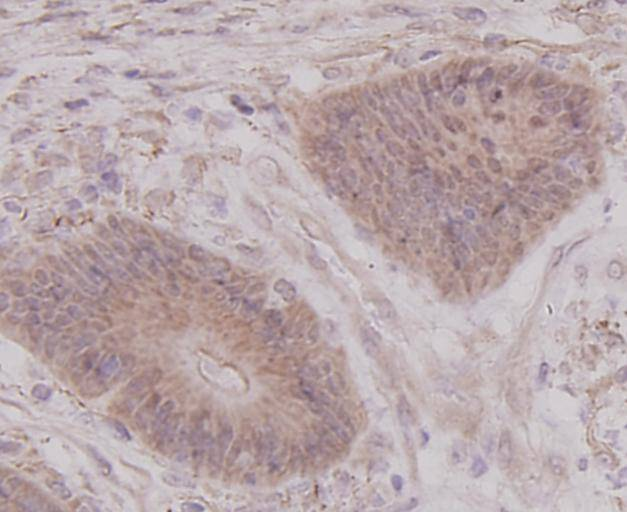 Immunohistochemical analysis of paraffin-embedded human colon cancer tissue using anti- p70 S6 Kinase beta antibody. Counter stained with hematoxylin.