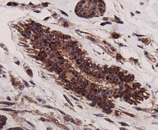 Immunohistochemical analysis of paraffin-embedded human breast cancer tissue using anti- p70 S6 Kinase beta antibody. Counter stained with hematoxylin.