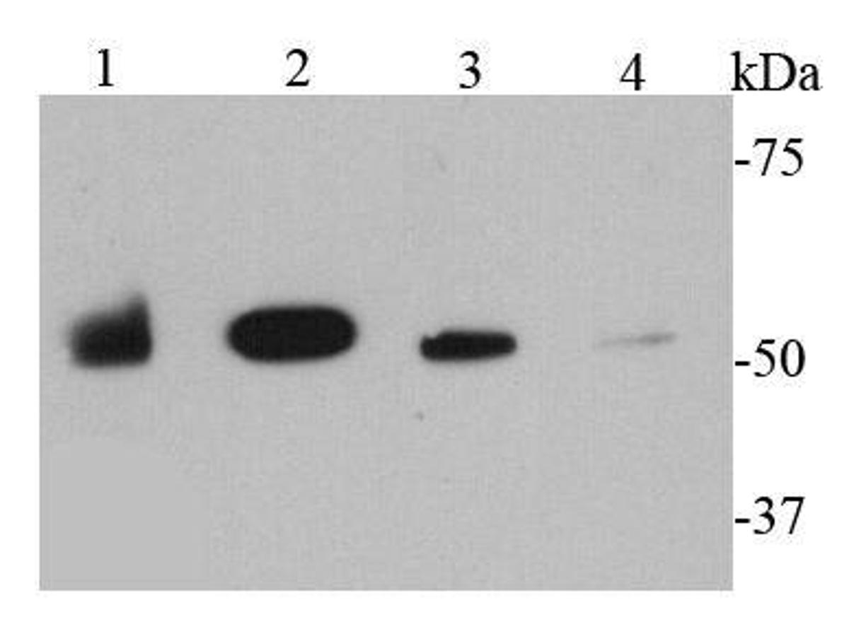 Western blot analysis of MMP1 on different cell lysates using anti-MMP1 antibody at 1/1000 dilution.<br />  Positive control: <br />  Lane 1: SKBR3 <br />  Lane 2: Raji <br />  Lane 3: A431 <br />  Lane 4: A549