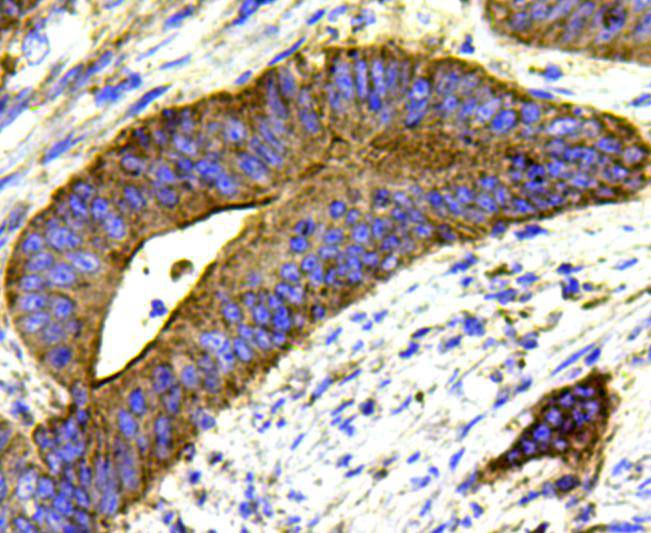 Immunohistochemical analysis of paraffin-embedded human colon cancer tissue using anti-MMP1 antibody. Counter stained with hematoxylin.