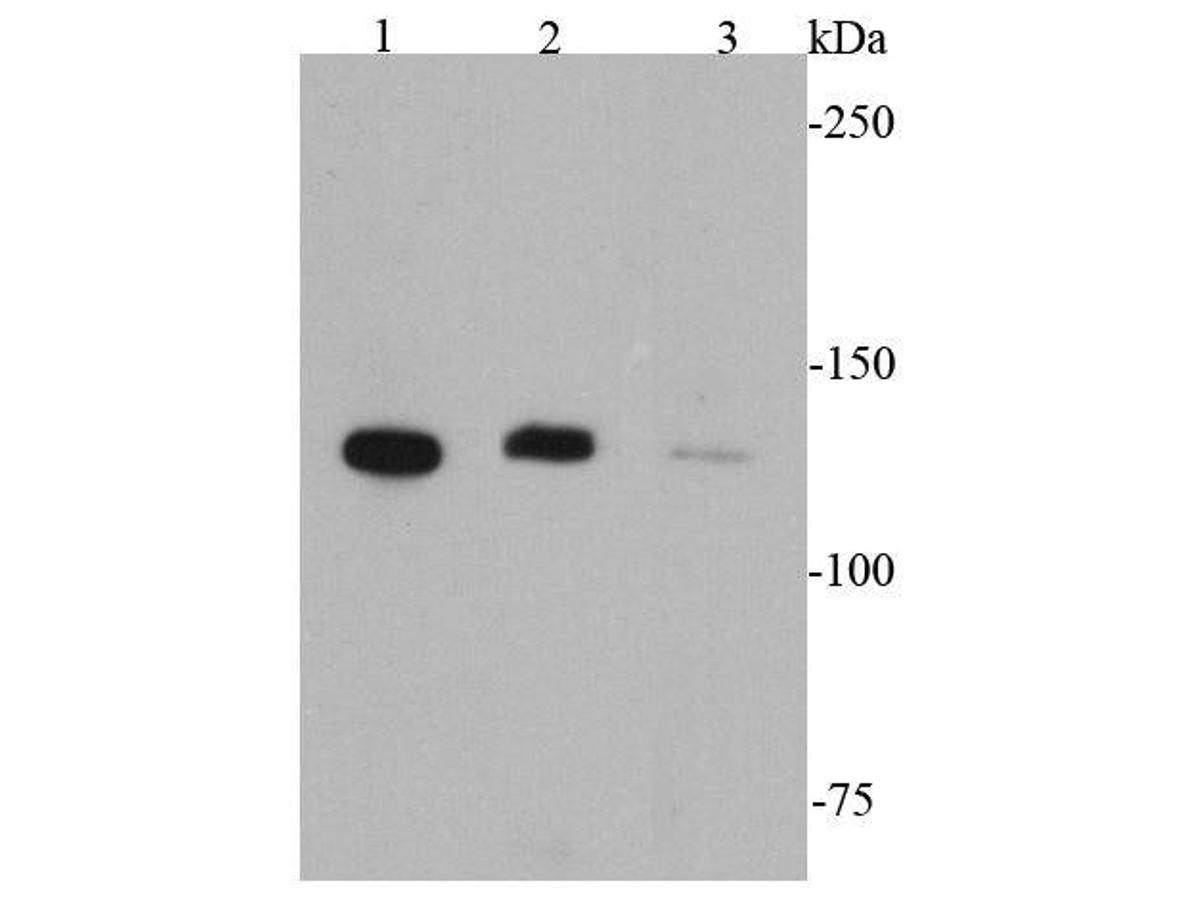 Western blot analysis of CD31 on different cell lysates using anti-CD31 antibody at 1/1000 dilution.