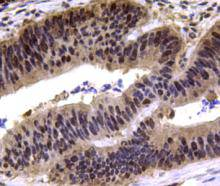 Immunohistochemical analysis of paraffin-embedded human colon carcinoma tissue using anti-MGMT antibody. Counter stained with hematoxylin.