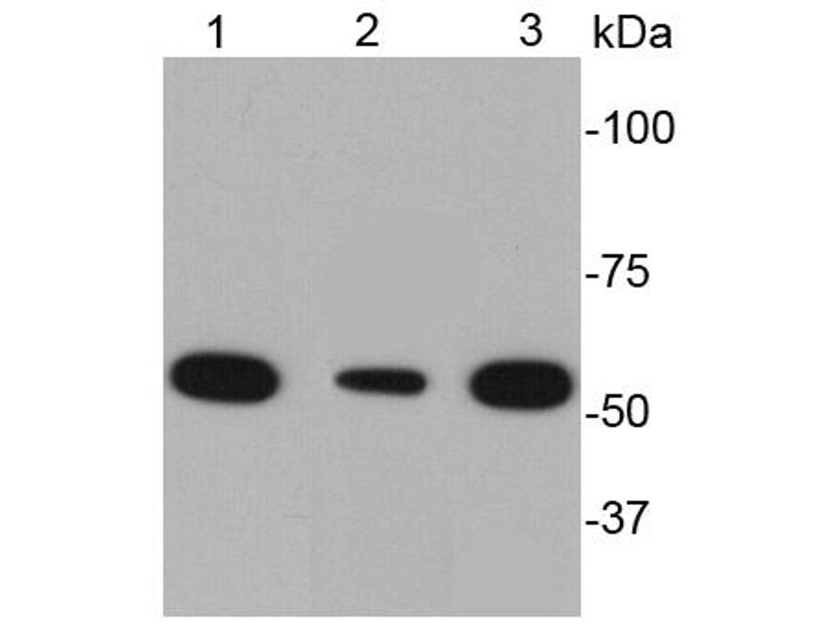 Western blot analysis of Desmin on different cell lysates using anti-Desmin antibody at 1/2000 dilution.<br /> Positive control:<br /> Lane 1: Human skeletal muscle tissue<br /> Lane 2: Mouse heart tissue<br /> Lane 3: Human heart tissue
