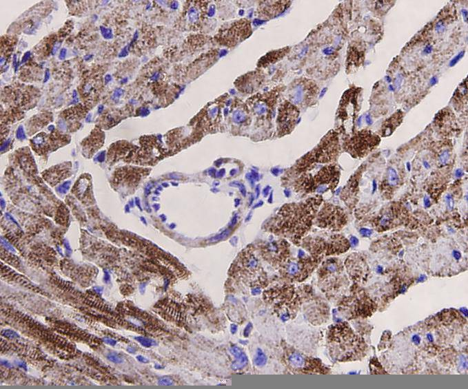 Immunohistochemical analysis of paraffin-embedded mouse heart tissue using anti-Desmin antibody. Counter stained with hematoxylin.