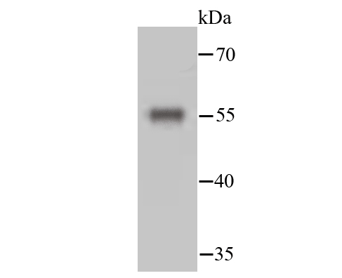 Western blot analysis of Desmin on hybrid fish (crucian-carp) brain tissue lysate using anti-Desmin antibody at 1/500 dilution.