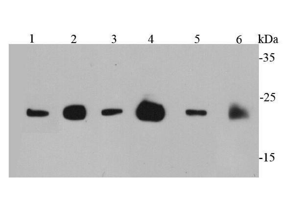Western blot analysis of Ras on different cell lysates using anti-Ras antibody at 1/1000 dilution.<br /> Positive control: <br /> Lane 1: PC12 <br /> Lane 2: MCF-7 <br /> Lane 3: 293T <br /> Lane 4: Mouse brain <br /> Lane 5: Mouse intestine <br /> Lane 6: Rat brain