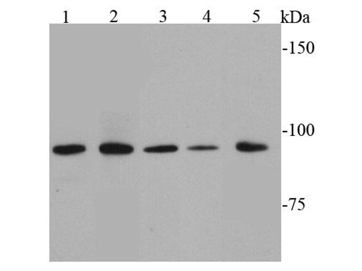 Western blot analysis of STAT6 on different cell lysates using anti-STAT6 antibody at 1/1000 dilution.<br />  Positive control: <br />   Lane 1: Raji <br />   Lane 2: Daudi <br />   Lane 3: Hela <br />   Lane 4: Ags <br />   Lane 5: Jurkat