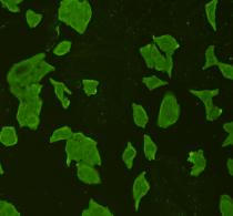 ICC staining STAT6 in Hela cells (green). Cells were fixed in paraformaldehyde, permeabilised with 0.25% Triton X100/PBS.