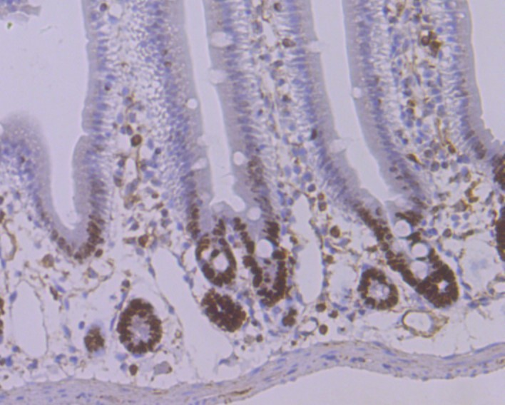Immunohistochemical analysis of paraffin-embedded human gastric carcinoma tissue using anti-STAT6 antibody. Counter stained with hematoxylin.