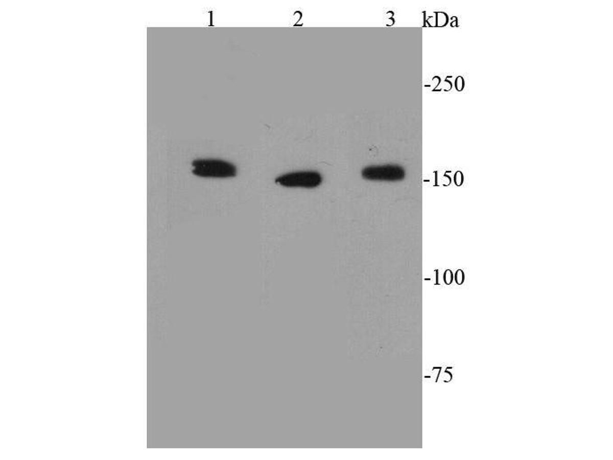 Western blot analysis of ROCK1 on different cell lysates using anti-ROCK1 antibody at 1/1000 dilution.<br /> Positive control:   <br /> Lane 1: NIH/3T3           <br /> Lane 2: Jurkat <br /> Lane 3: Hela