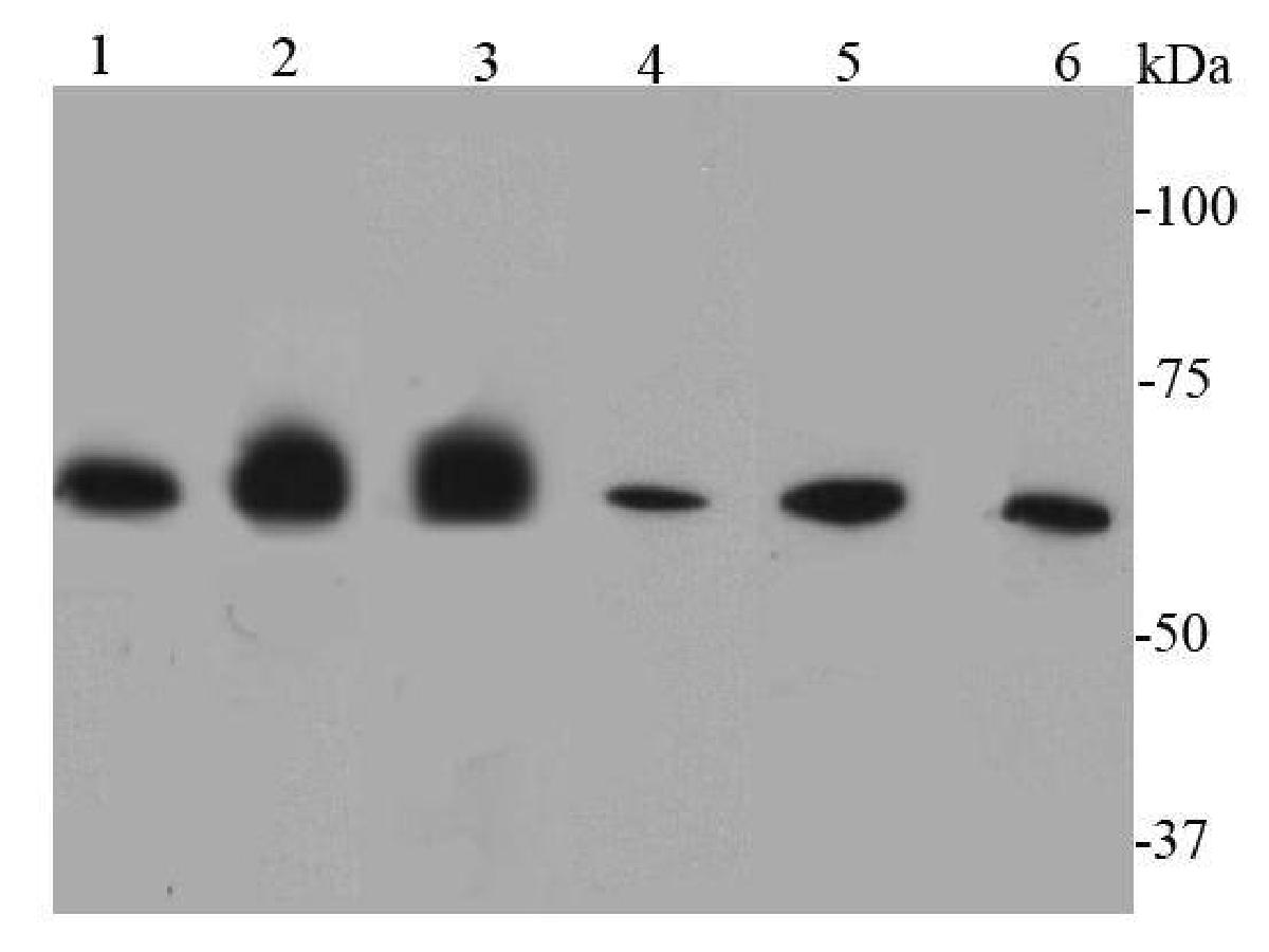 Western blot analysis of Caveolin-1 on different lysates using anti-Caveolin-1 antibody at 1/500 dilution.<br /> Positive control:<br /> Lane 1: F9<br /> Lane 2: A549<br /> Lane 3: Mouse lung<br /> Lane 4: Mouse liver<br /> Lane 5: Human lung<br /> Lane 6: Hela<br /> Lane 7: HepG2<br /> Lane 8: Jurkat