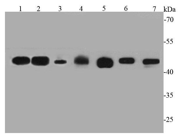 Western blot analysis of GAP43 on different cell lysates using anti-GAP43 antibody at 1/1000 dilution.<br /> Positive control:<br /> Lane 1: Rat brain<br /> Lane 2: Mouse brain<br /> Lane 3: Mouse heart<br /> Lane 4: Human skeletal muscle<br /> Lane 5: N2A<br /> Lane 6: A172<br /> Lane 7: Human heart